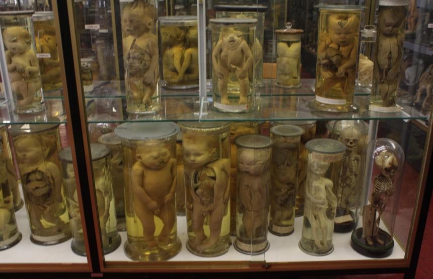 Музей Дюпюитрена  (Musee Dupuytren),  Париж, Франция